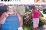 Mulher elimina mais de 130 kg e pede cirurgia para remover excesso de pele
