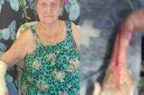 Crivella pede desculpas a idosa que teve o braço cortado ao retirar gesso em hospital