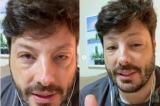 Danilo Gentili sofre reação alérgica e aparece com rosto deformado nas redes sociais