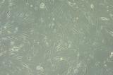 Perfil genético de tumores pode indicar melhorar condução terapêutica de pacientes com câncer no cérebro